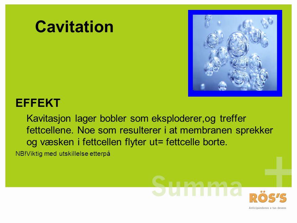 Cavitation EFFEKT Kavitasjon lager bobler som eksploderer,og treffer fettcellene. Noe som resulterer i at membranen sprekker og væsken i fettcellen fl