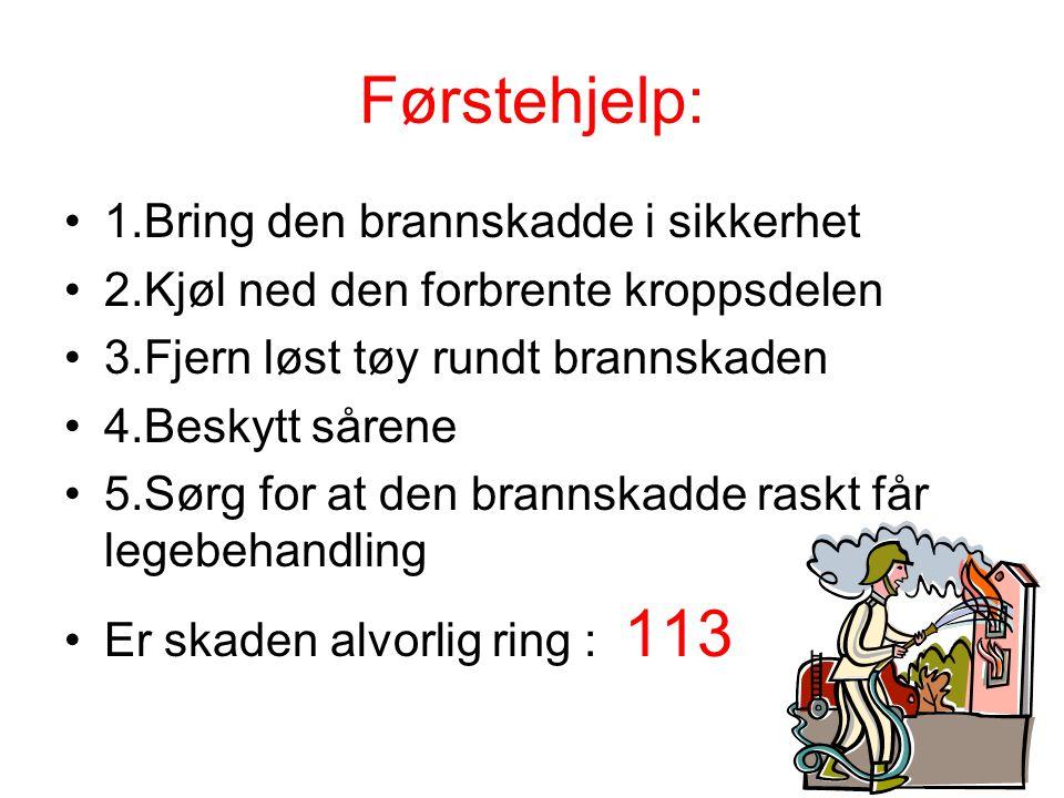 Førstehjelp: •1.Bring den brannskadde i sikkerhet •2.Kjøl ned den forbrente kroppsdelen •3.Fjern løst tøy rundt brannskaden •4.Beskytt sårene •5.Sørg
