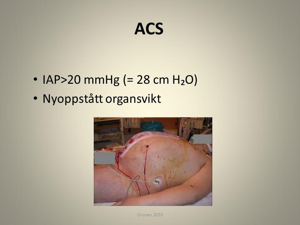 ACS • IAP>20 mmHg (= 28 cm H₂O) • Nyoppstått organsvikt Groven 2010