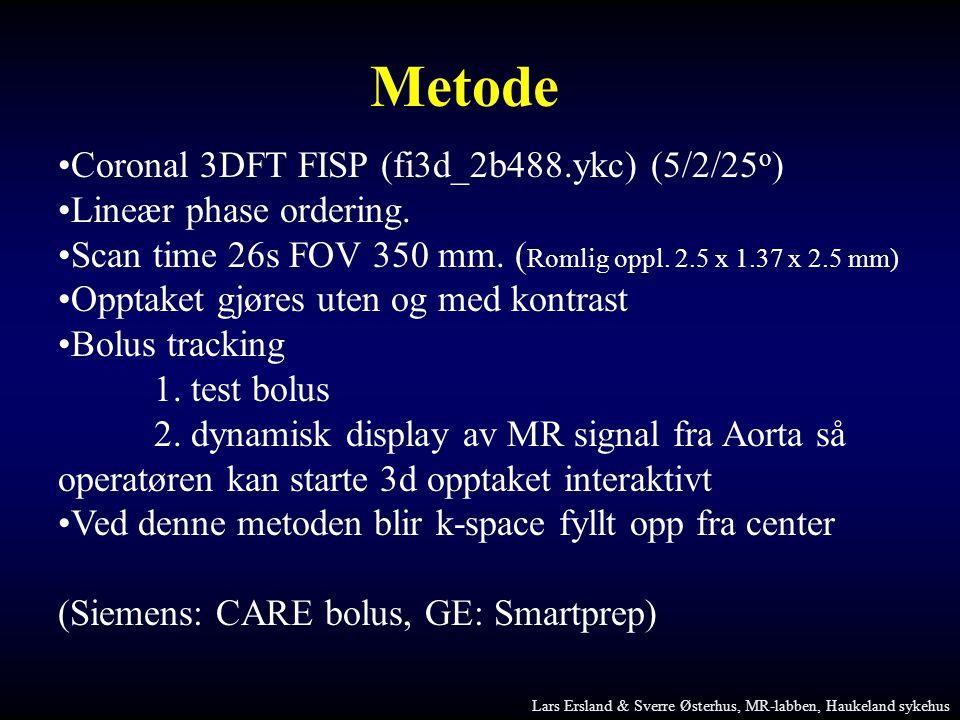 Metode •Coronal 3DFT FISP (fi3d_2b488.ykc) (5/2/25 o ) •Lineær phase ordering. •Scan time 26s FOV 350 mm. ( Romlig oppl. 2.5 x 1.37 x 2.5 mm) •Opptake