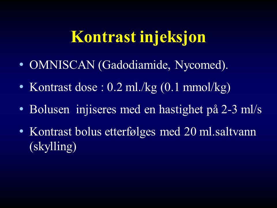 Kontrast injeksjon • OMNISCAN (Gadodiamide, Nycomed). • Kontrast dose : 0.2 ml./kg (0.1 mmol/kg) • Bolusen injiseres med en hastighet på 2-3 ml/s • Ko
