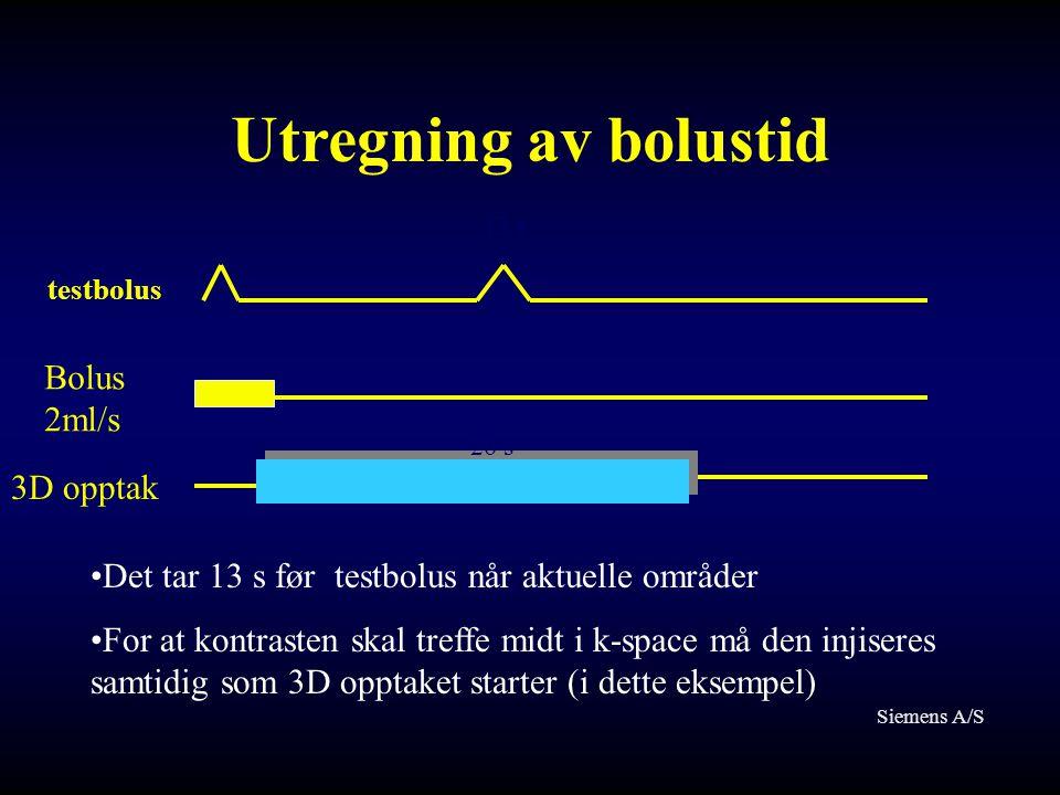 Utregning av bolustid 13 s Bolus 2ml/s 3D opptak 26 s •Det tar 13 s før testbolus når aktuelle områder •For at kontrasten skal treffe midt i k-space m