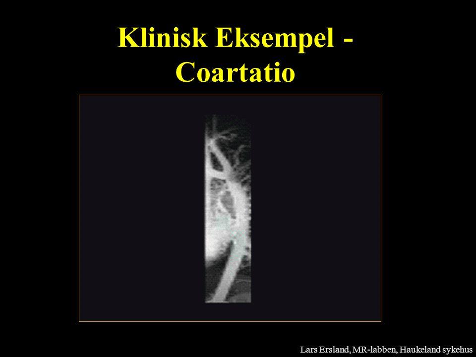 Klinisk Eksempel - Coartatio Lars Ersland, MR-labben, Haukeland sykehus