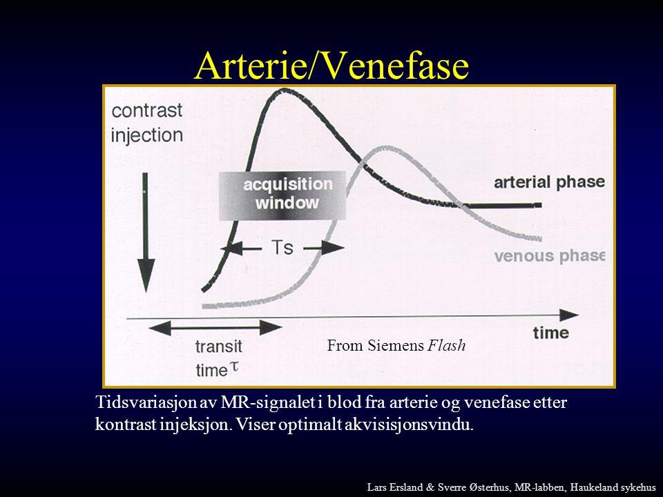 Tidsvariasjon av MR-signalet i blod fra arterie og venefase etter kontrast injeksjon. Viser optimalt akvisisjonsvindu. From Siemens Flash Arterie/Vene