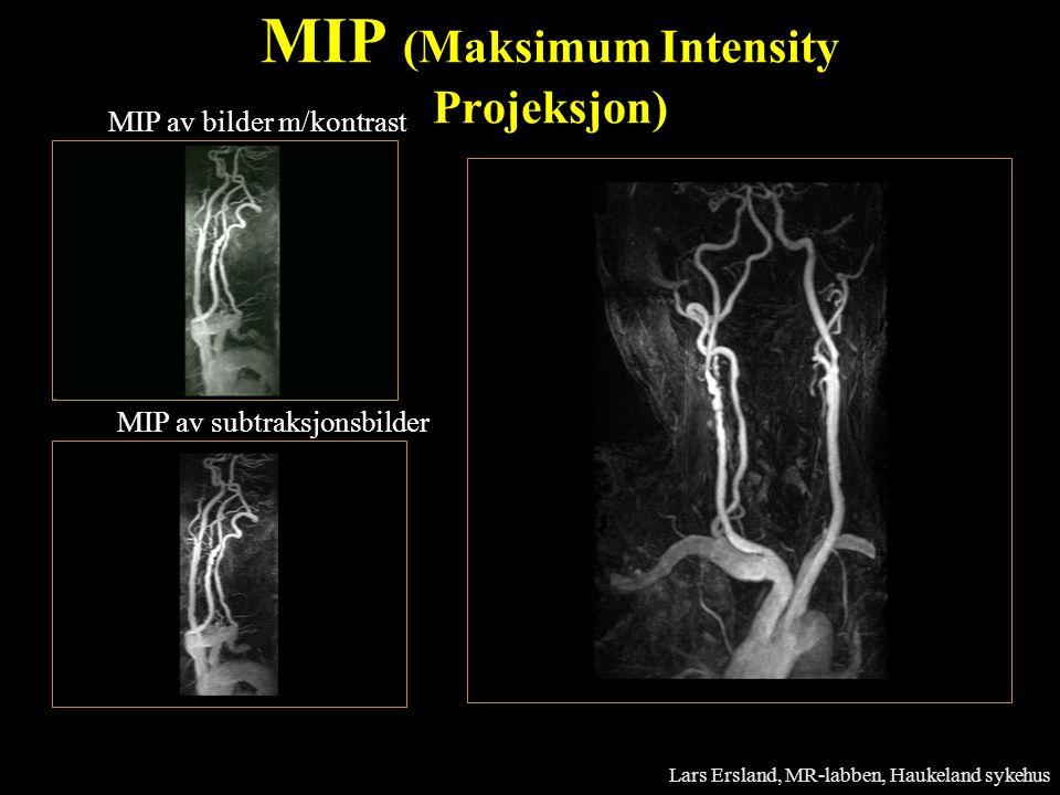MIP av bilder m/kontrast MIP av subtraksjonsbilder MIP (Maksimum Intensity Projeksjon) Lars Ersland, MR-labben, Haukeland sykehus
