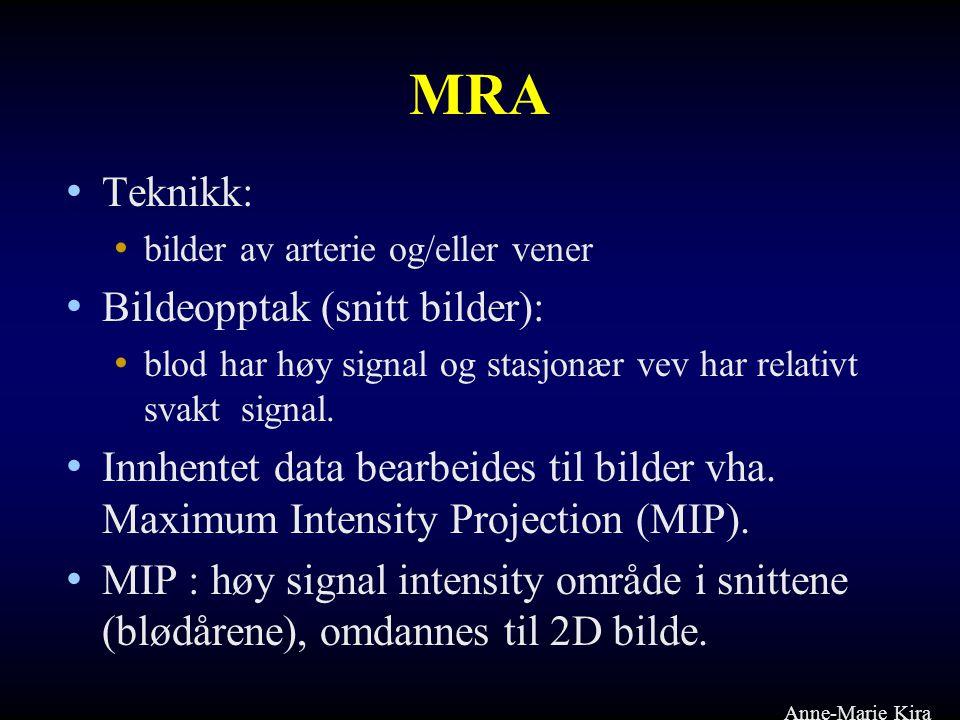 MRA • Teknikk: • bilder av arterie og/eller vener • Bildeopptak (snitt bilder): • blod har høy signal og stasjonær vev har relativt svakt signal. • In