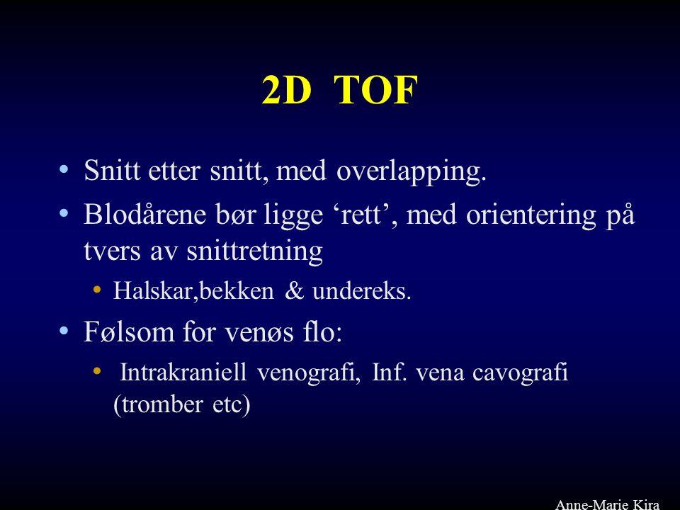2D TOF • Snitt etter snitt, med overlapping. • Blodårene bør ligge 'rett', med orientering på tvers av snittretning • Halskar,bekken & undereks. • Føl