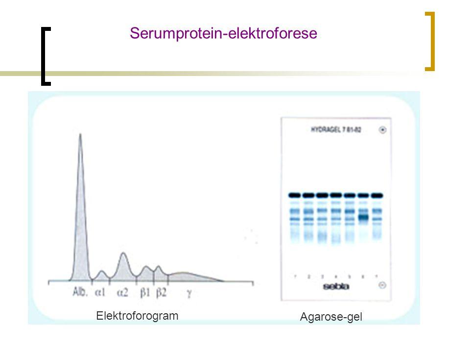 Serumprotein-elektroforese Agarose-gel Elektroforogram