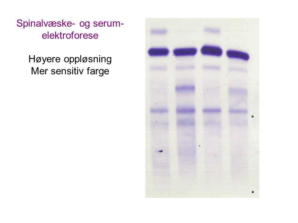 Spinalvæske- og serum- elektroforese Høyere oppløsning Mer sensitiv farge