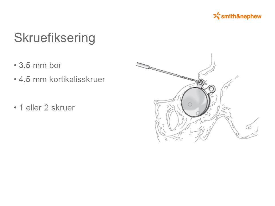 Skruefiksering • 3,5 mm bor • 4,5 mm kortikalisskruer • 1 eller 2 skruer