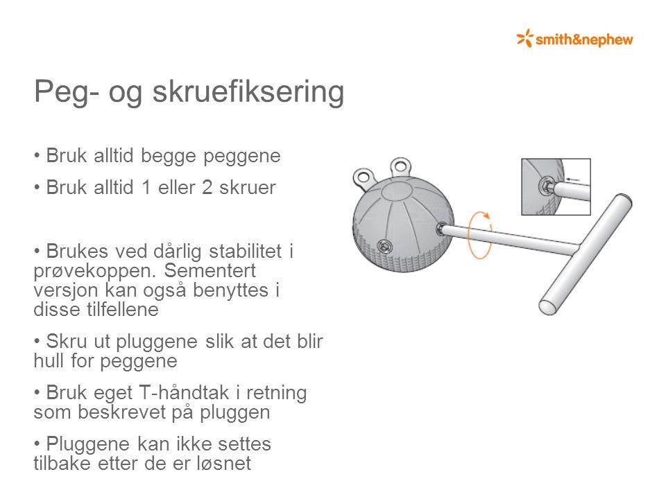 Peg- og skruefiksering • Bruk alltid begge peggene • Bruk alltid 1 eller 2 skruer • Brukes ved dårlig stabilitet i prøvekoppen.