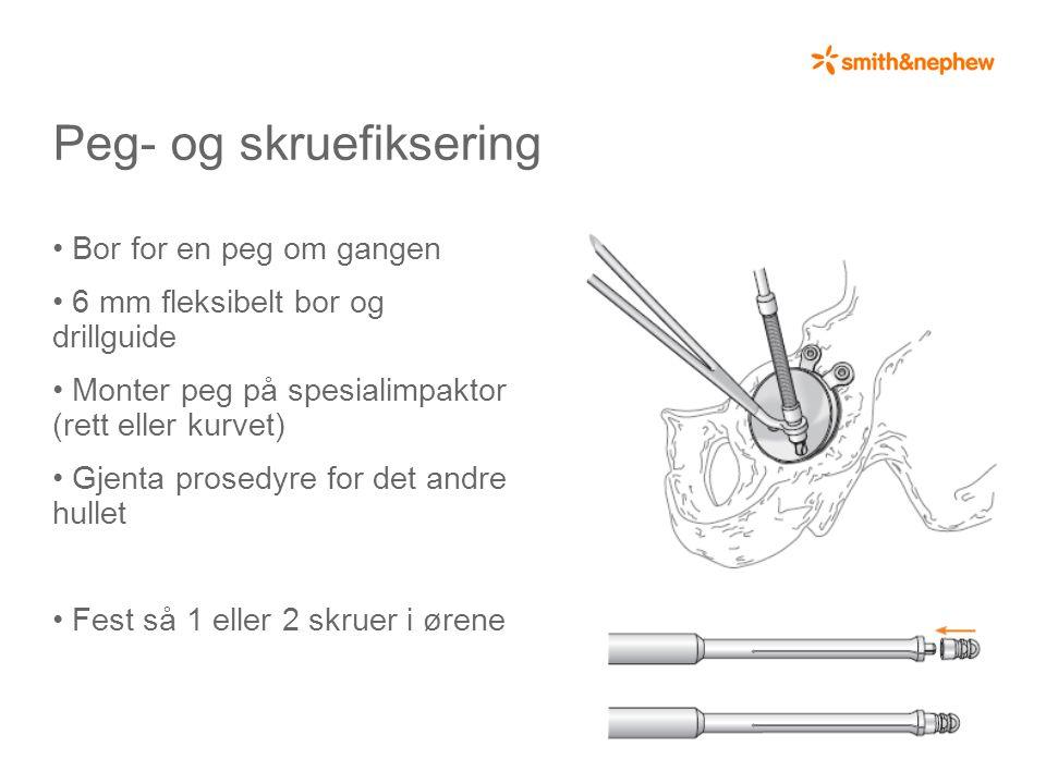 Peg- og skruefiksering • Bor for en peg om gangen • 6 mm fleksibelt bor og drillguide • Monter peg på spesialimpaktor (rett eller kurvet) • Gjenta prosedyre for det andre hullet • Fest så 1 eller 2 skruer i ørene