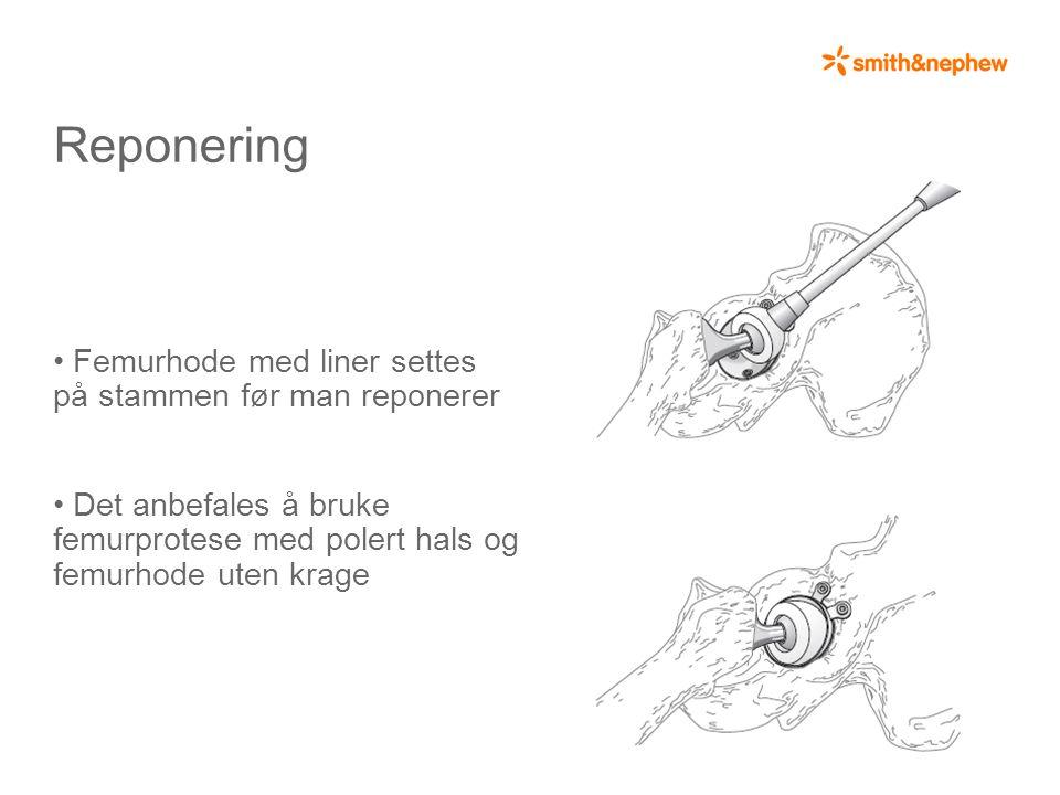 Reponering • Femurhode med liner settes på stammen før man reponerer • Det anbefales å bruke femurprotese med polert hals og femurhode uten krage