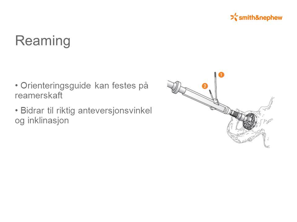 Reaming • Orienteringsguide kan festes på reamerskaft • Bidrar til riktig anteversjonsvinkel og inklinasjon