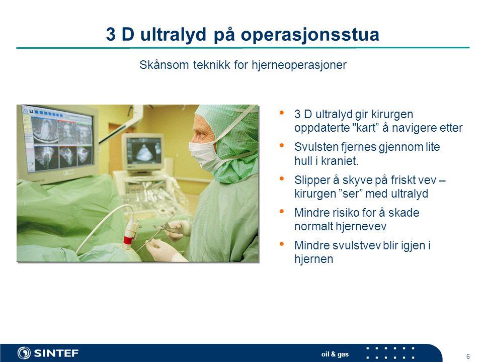 oil & gas 6 3 D ultralyd på operasjonsstua Skånsom teknikk for hjerneoperasjoner • 3 D ultralyd gir kirurgen oppdaterte