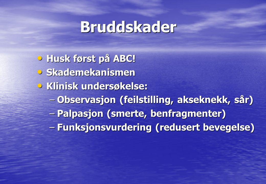 Bruddskader Bruddskader • Husk først på ABC! • Skademekanismen • Klinisk undersøkelse: –Observasjon (feilstilling, akseknekk, sår) –Palpasjon (smerte,
