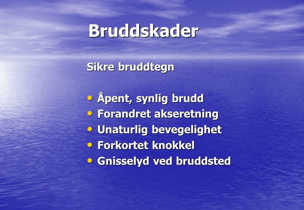 Bruddskader Bruddskader Sikre bruddtegn • Åpent, synlig brudd • Forandret akseretning • Unaturlig bevegelighet • Forkortet knokkel • Gnisselyd ved bru