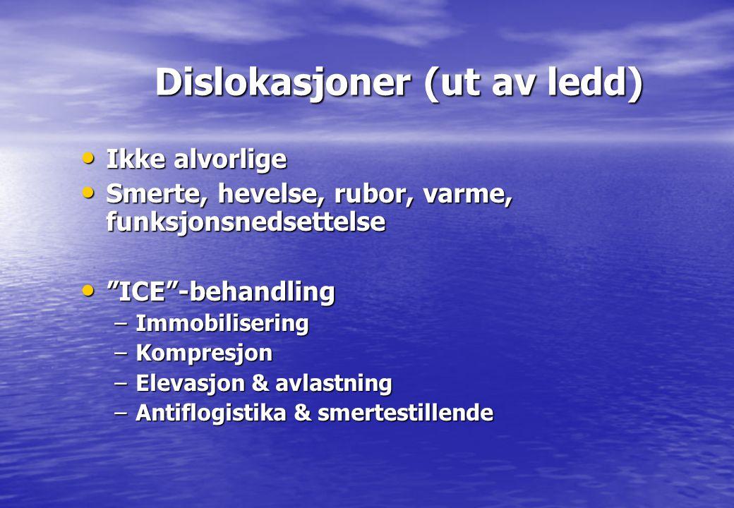 """Dislokasjoner (ut av ledd) Dislokasjoner (ut av ledd) • Ikke alvorlige • Smerte, hevelse, rubor, varme, funksjonsnedsettelse • """"ICE""""-behandling –Immob"""