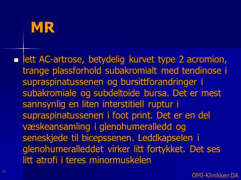 MR  lett AC-artrose, betydelig kurvet type 2 acromion, trange plassforhold subakromialt med tendinose i supraspinatussenen og bursittforandringer i s