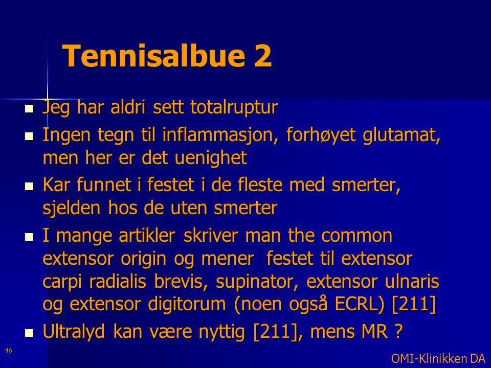 Tennisalbue 2  Jeg har aldri sett totalruptur  Ingen tegn til inflammasjon, forhøyet glutamat, men her er det uenighet  Kar funnet i festet i de fl