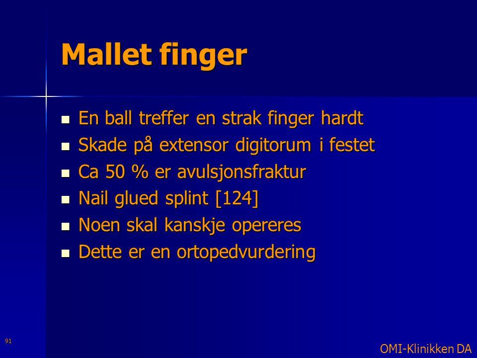 Mallet finger  En ball treffer en strak finger hardt  Skade på extensor digitorum i festet  Ca 50 % er avulsjonsfraktur  Nail glued splint [124] 