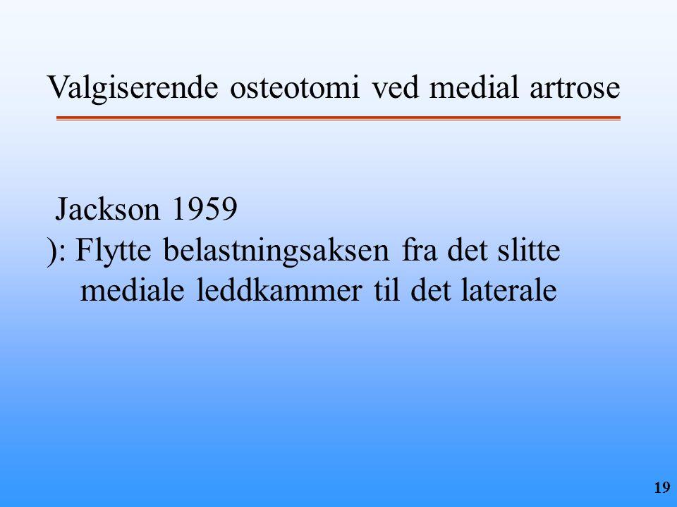 19 Valgiserende osteotomi ved medial artrose Jackson 1959 ): Flytte belastningsaksen fra det slitte mediale leddkammer til det laterale