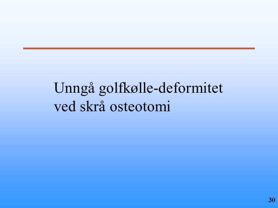 30 Unngå golfkølle-deformitet ved skrå osteotomi