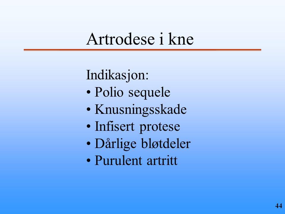 44 Artrodese i kne Indikasjon: • Polio sequele • Knusningsskade • Infisert protese • Dårlige bløtdeler • Purulent artritt