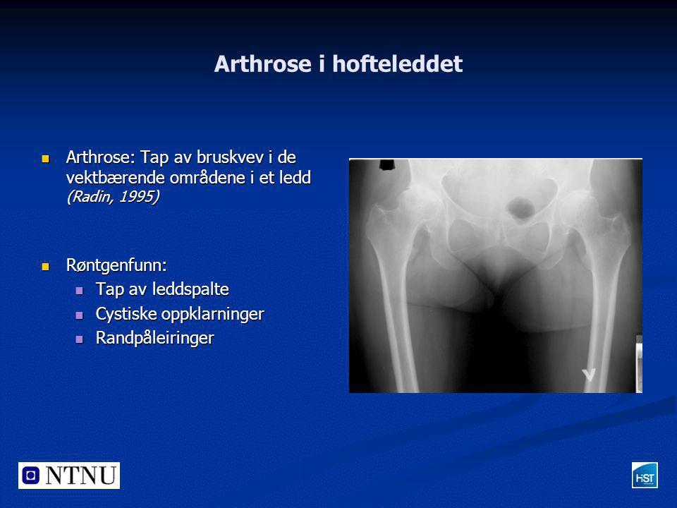 Arthrose i hofteleddet  Arthrose: Tap av bruskvev i de vektbærende områdene i et ledd (Radin, 1995)  Røntgenfunn:  Tap av leddspalte  Cystiske opp