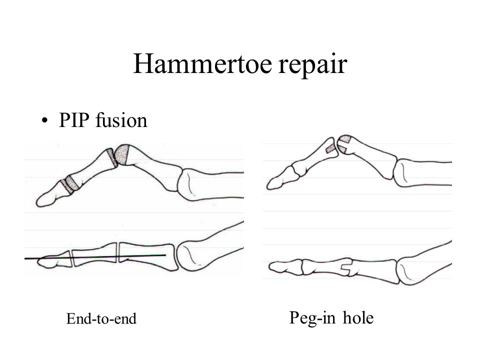 Hammertoe repair •PIP fusion End-to-end Peg-in hole