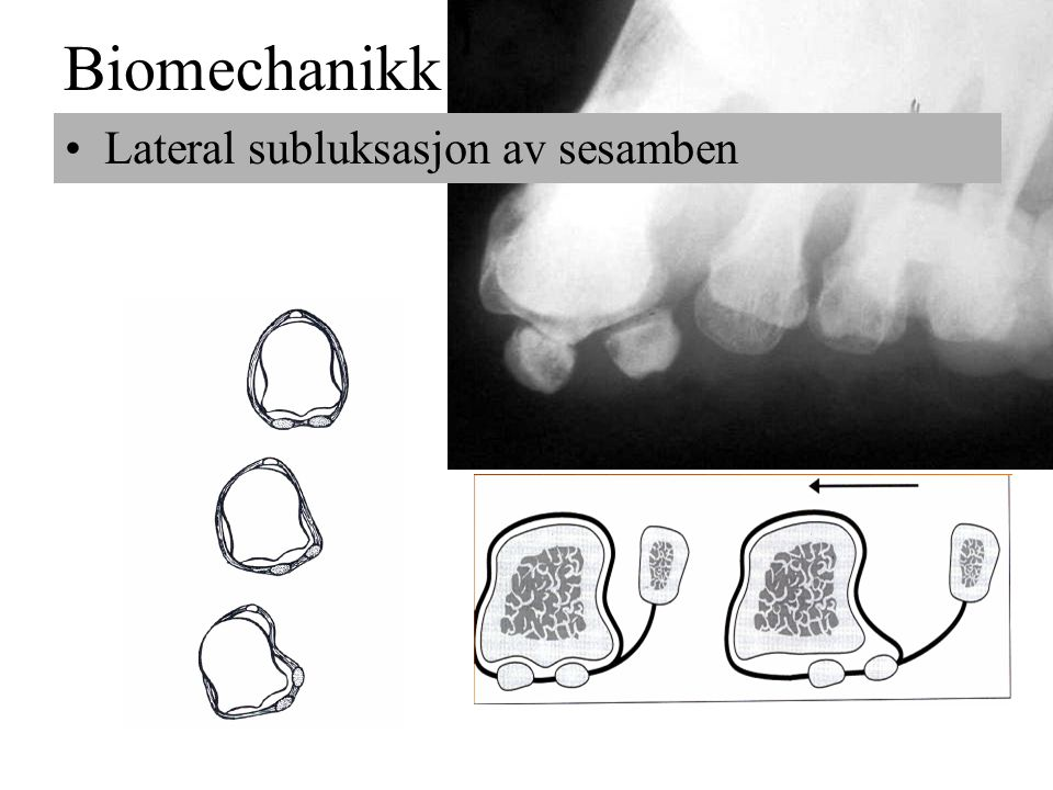 Biomechanikk •Lateral subluksasjon av sesamben