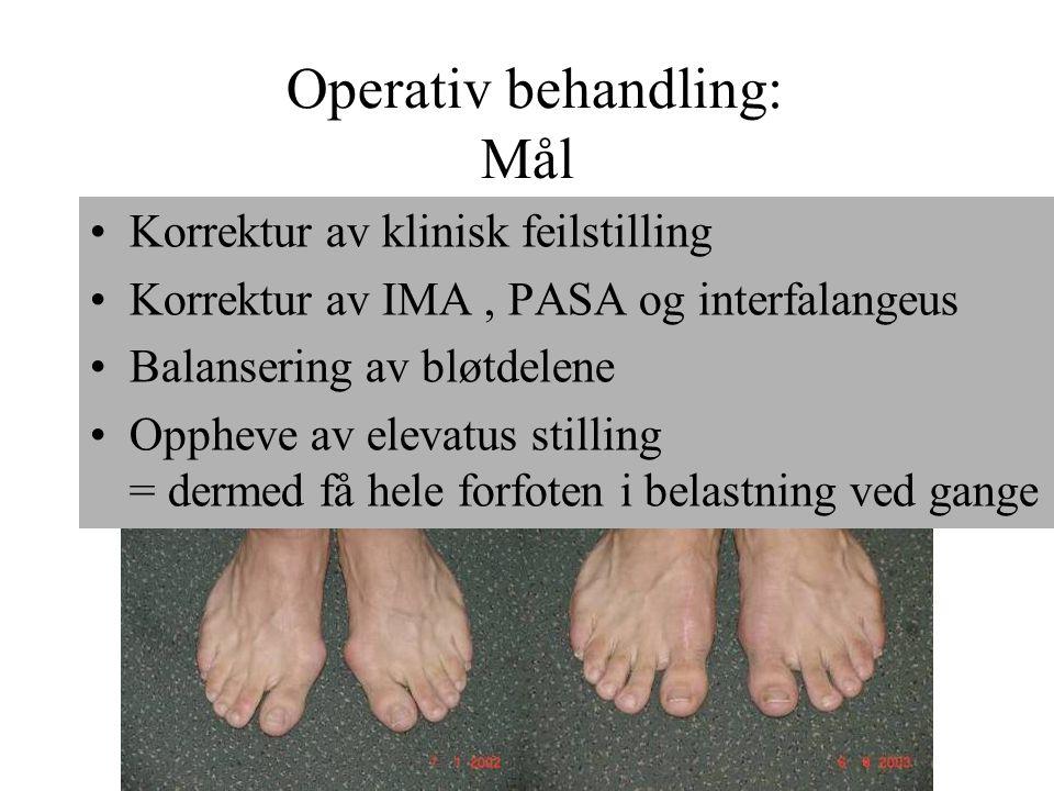 Operativ behandling: Mål •Korrektur av klinisk feilstilling •Korrektur av IMA, PASA og interfalangeus •Balansering av bløtdelene •Oppheve av elevatus