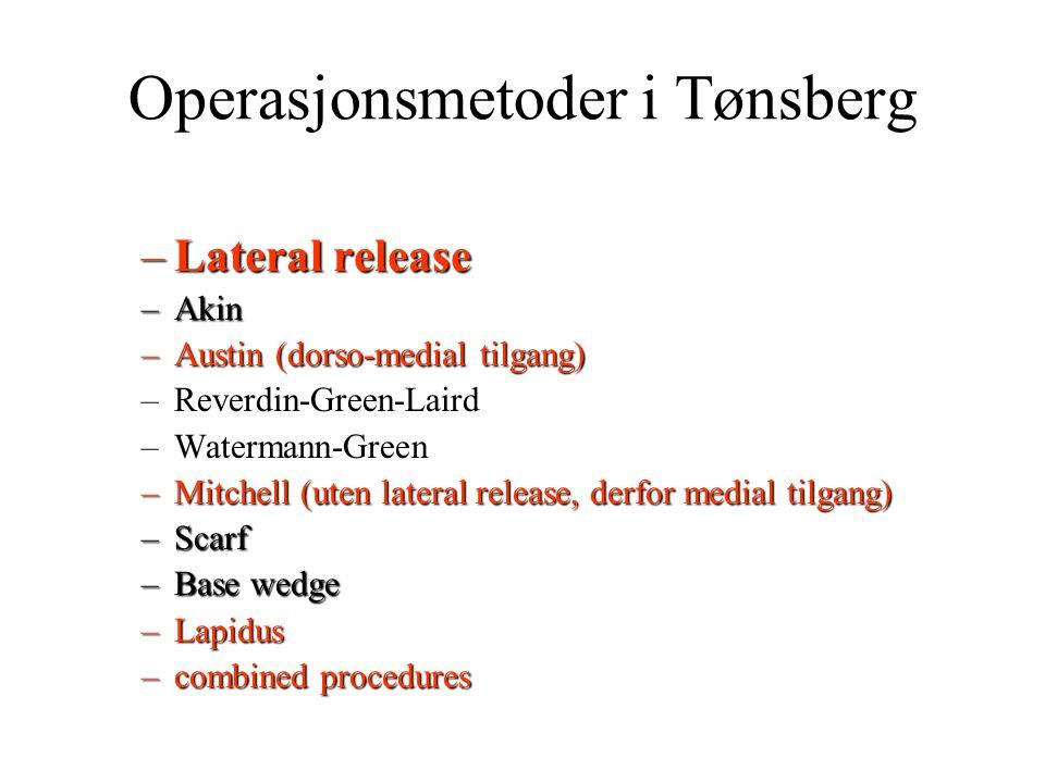 Operasjonsmetoder i Tønsberg –Lateral release –Akin –Austin (dorso-medial tilgang) –Reverdin-Green-Laird –Watermann-Green –Mitchell (uten lateral rele