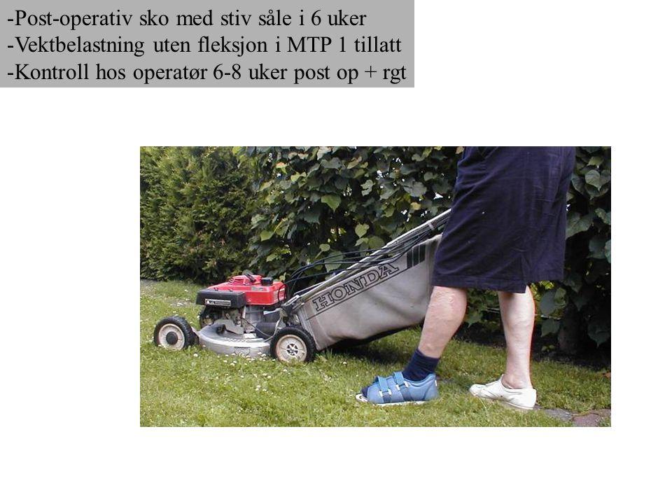 -Post-operativ sko med stiv såle i 6 uker -Vektbelastning uten fleksjon i MTP 1 tillatt -Kontroll hos operatør 6-8 uker post op + rgt