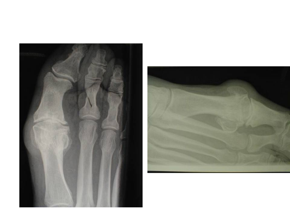 Etiologi hallux rigidus •trauma (idrett, sko,iatrogen) •ervervet feilstilling (metatars.