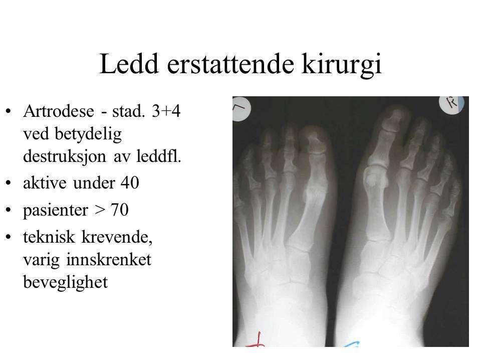 Ledd erstattende kirurgi •Artrodese - stad. 3+4 ved betydelig destruksjon av leddfl. •aktive under 40 •pasienter > 70 •teknisk krevende, varig innskre