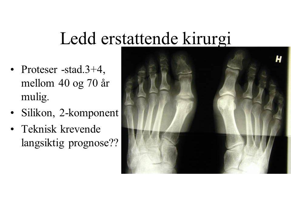 •Proteser -stad.3+4, mellom 40 og 70 år mulig. •Silikon, 2-komponent •Teknisk krevende langsiktig prognose?? Ledd erstattende kirurgi