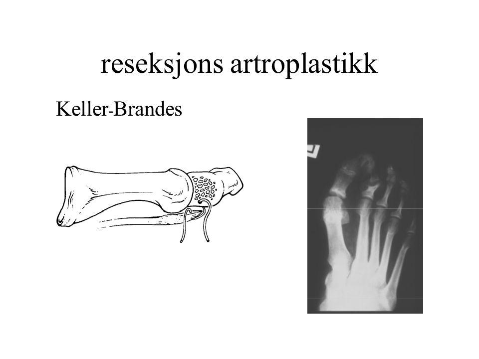 reseksjons artroplastikk Keller - Brandes