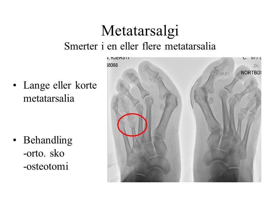 Metatarsalgi Smerter i en eller flere metatarsalia •Lange eller korte metatarsalia •Behandling -orto. sko -osteotomi