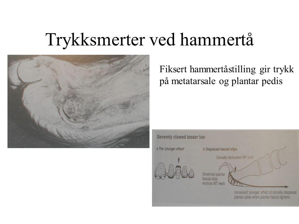 Trykksmerter ved hammertå Fiksert hammertåstilling gir trykk på metatarsale og plantar pedis