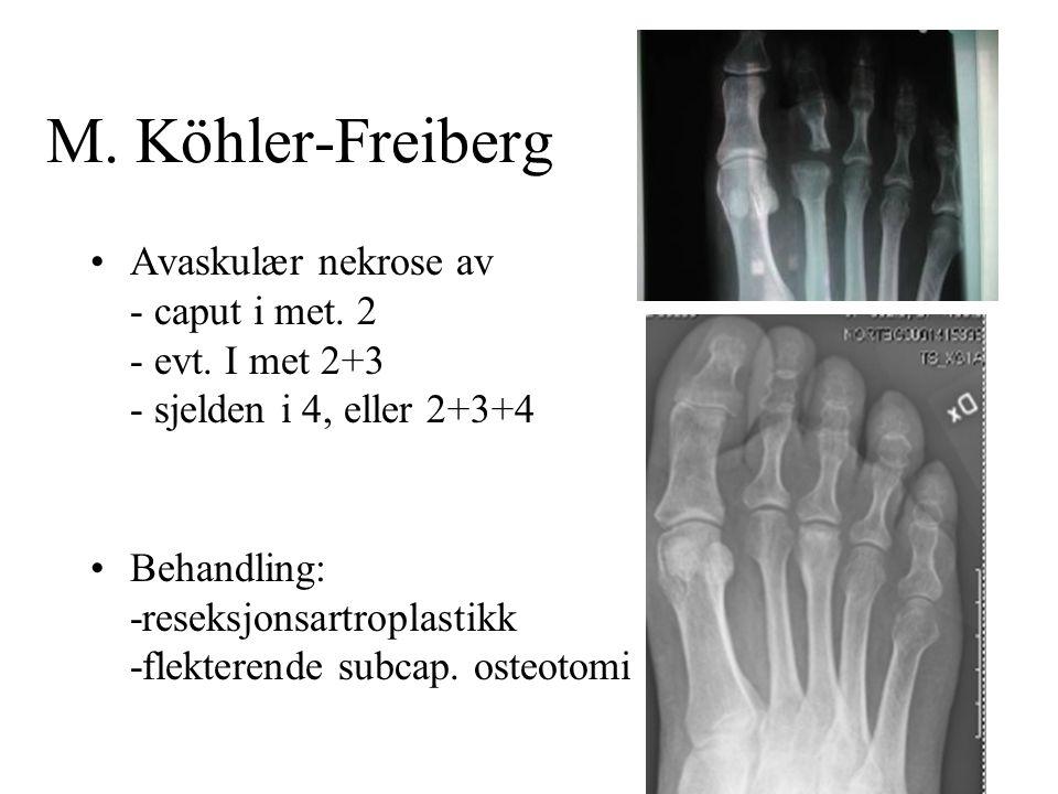 M. Köhler-Freiberg •Avaskulær nekrose av - caput i met. 2 - evt. I met 2+3 - sjelden i 4, eller 2+3+4 •Behandling: -reseksjonsartroplastikk -flekteren