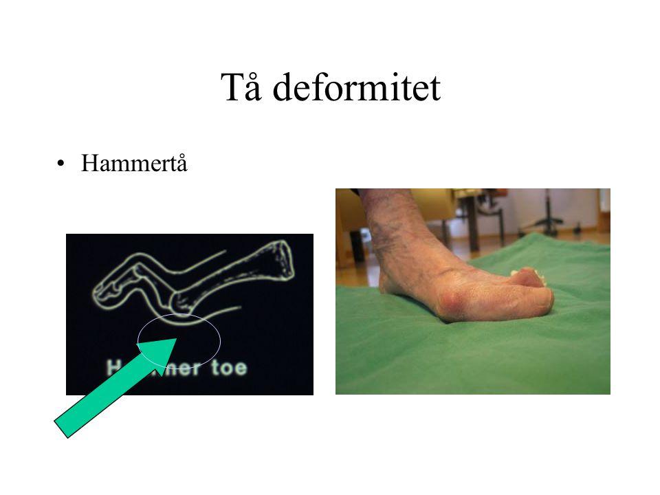 Tå deformitet •Hammertå