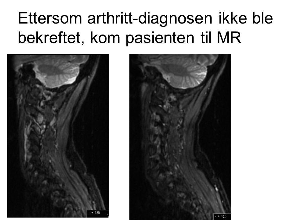 Ettersom arthritt-diagnosen ikke ble bekreftet, kom pasienten til MR