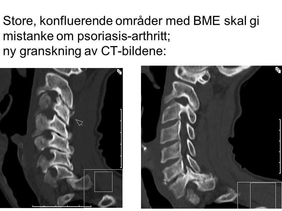Store, konfluerende områder med BME skal gi mistanke om psoriasis-arthritt; ny granskning av CT-bildene:
