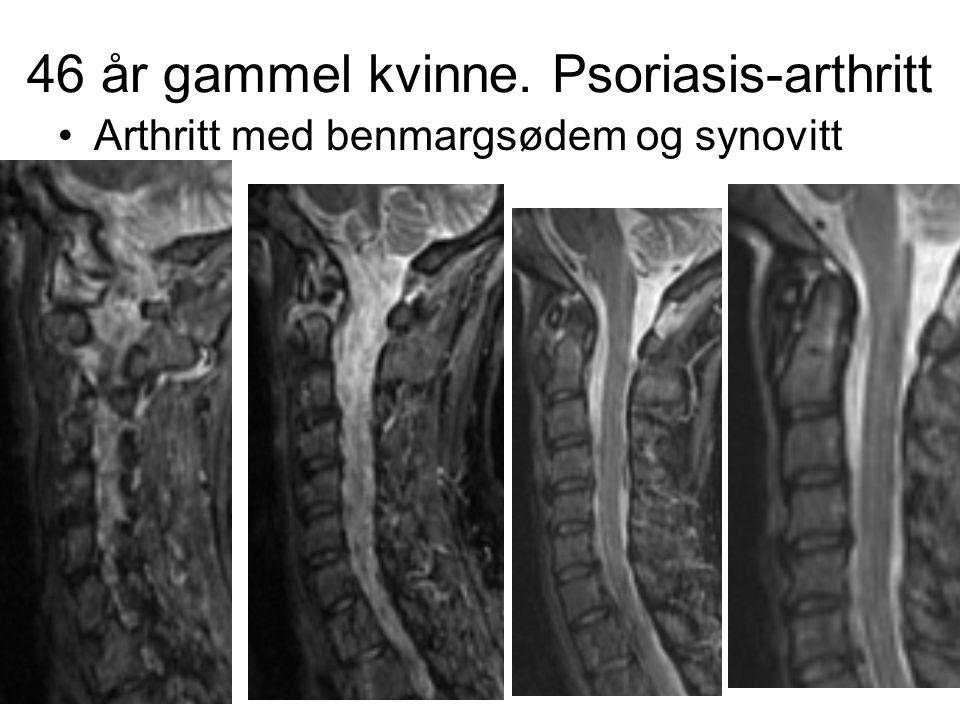 46 år gammel kvinne. Psoriasis-arthritt •Arthritt med benmargsødem og synovitt