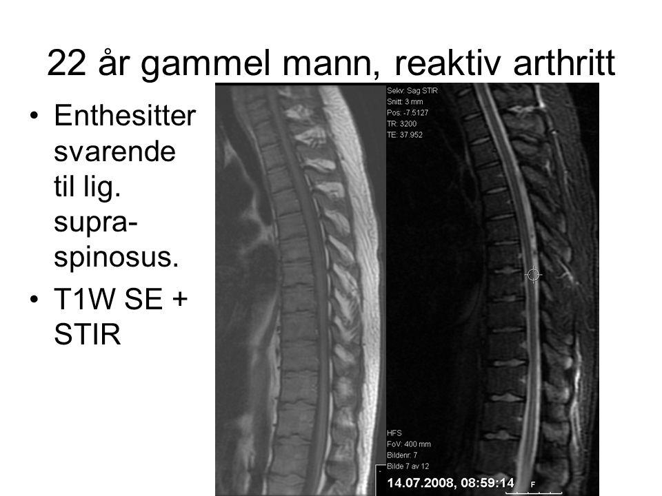22 år gammel mann, reaktiv arthritt •Enthesitter svarende til lig. supra- spinosus. •T1W SE + STIR