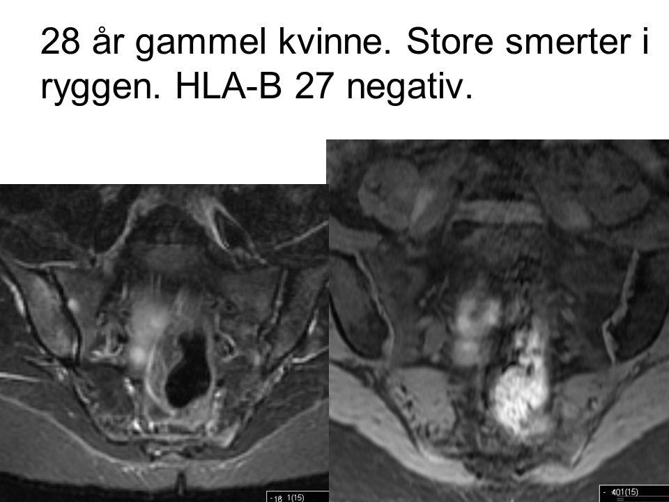 28 år gammel kvinne. Store smerter i ryggen. HLA-B 27 negativ.