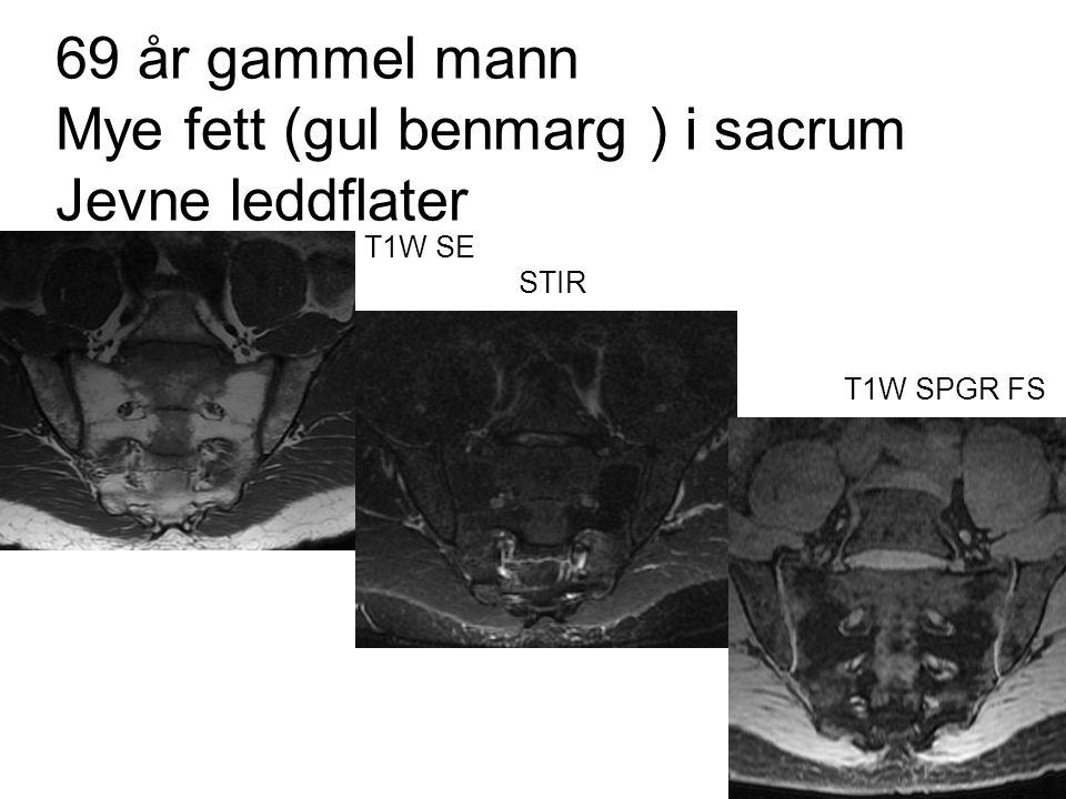 69 år gammel mann Mye fett (gul benmarg ) i sacrum Jevne leddflater T1W SE STIR T1W SPGR FS