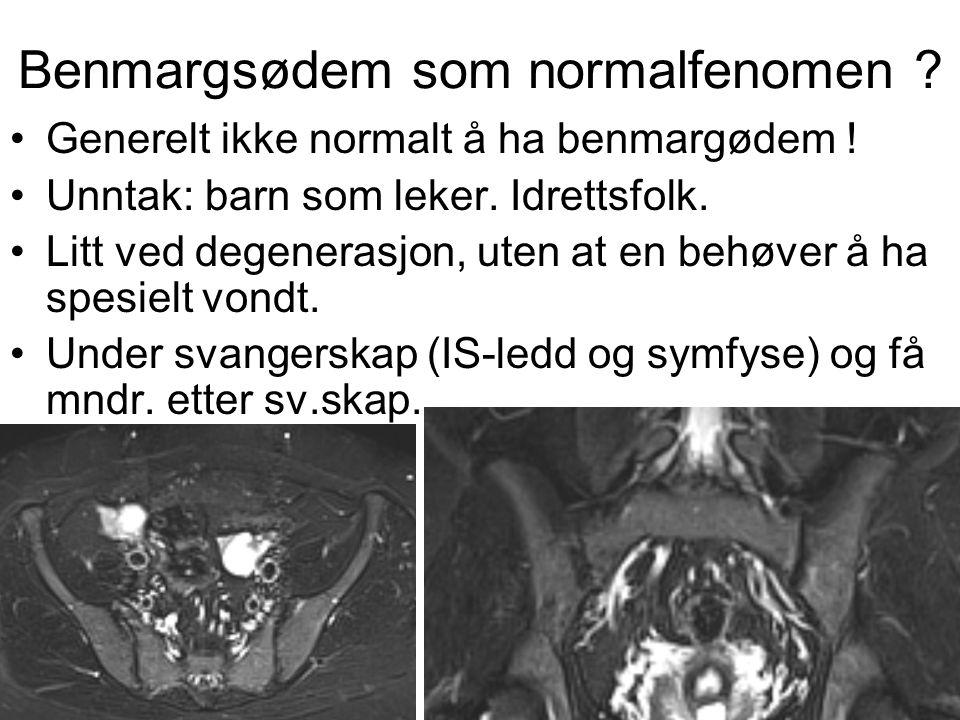 Benmargsødem som normalfenomen .•Generelt ikke normalt å ha benmargødem .