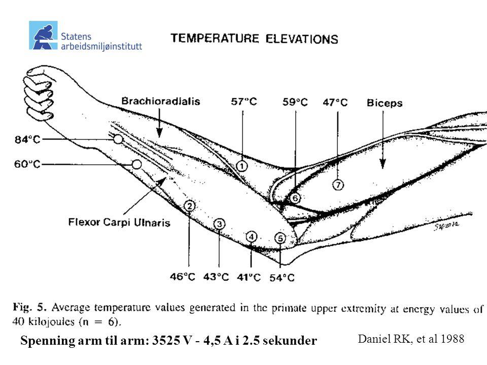 Daniel RK, et al 1988 Spenning arm til arm: 3525 V - 4,5 A i 2.5 sekunder